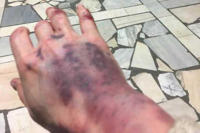 Опубликовано видео жестокого избиения москвички таксистом