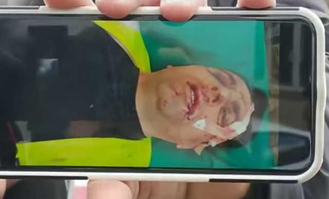 В Москве избили корреспондентов «Росдержавы», двое из них госпитализированы